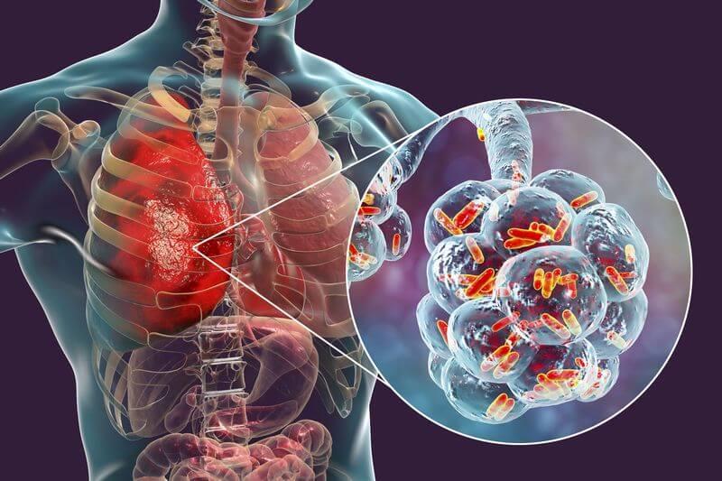 Menschliche Lunge mit Bakterienbefall